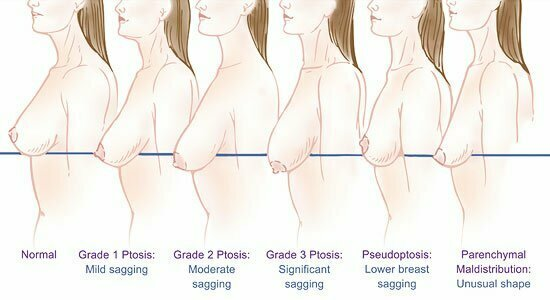 Atlanta ga breast lift surgeon