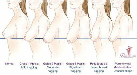 Swan-center-breast-lift