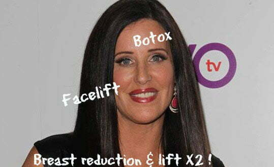 patti stanger before after