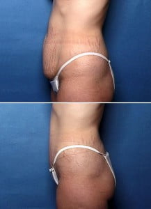 tummy tuck side view Swan Center for Plastic Surgery