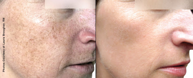 Before & after BBL therapy. Photos courtesy Sciton, inc.