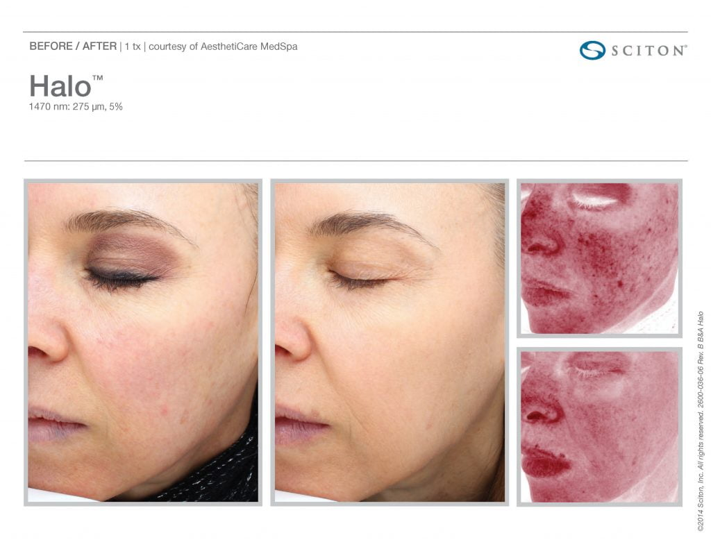 before and after photos HALO laser