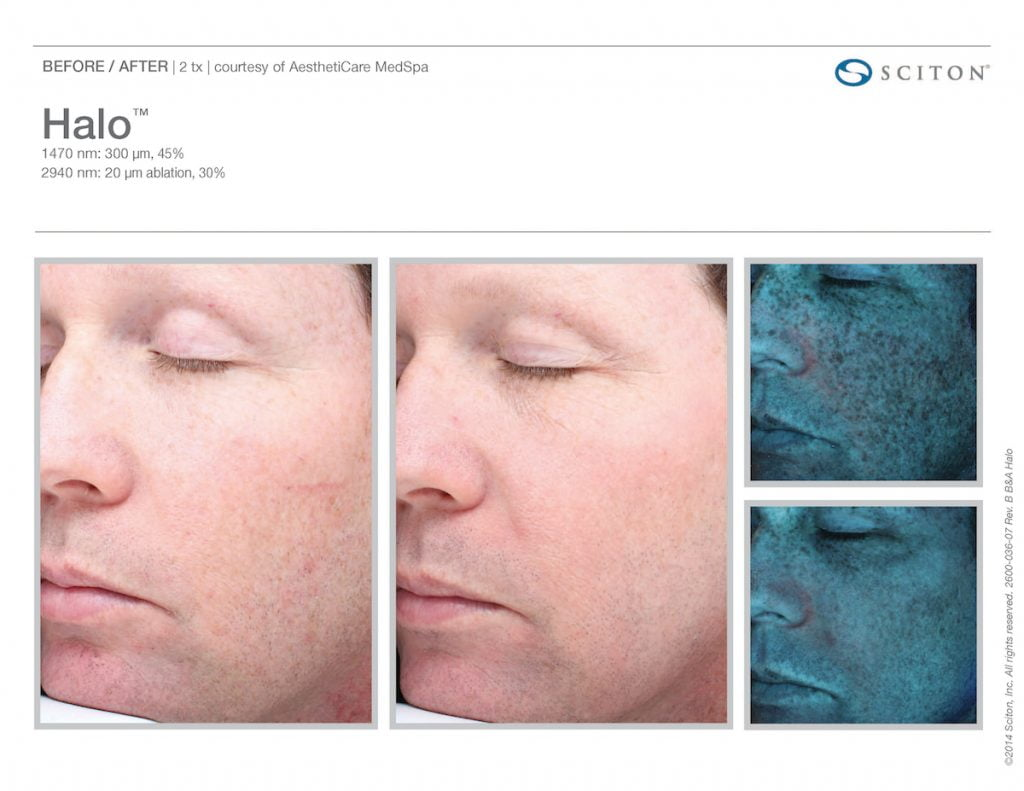 Atlanta laser skin resurfacing for men