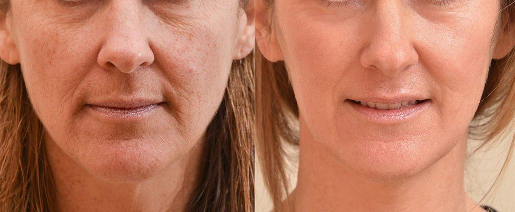 contour-trl-laser-before-after-atlanta