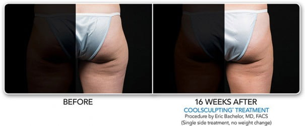 Coolsmooth Outer Thigh Fat Reduction Swan Center For