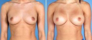 breast-augmentation-7314a-swan-center