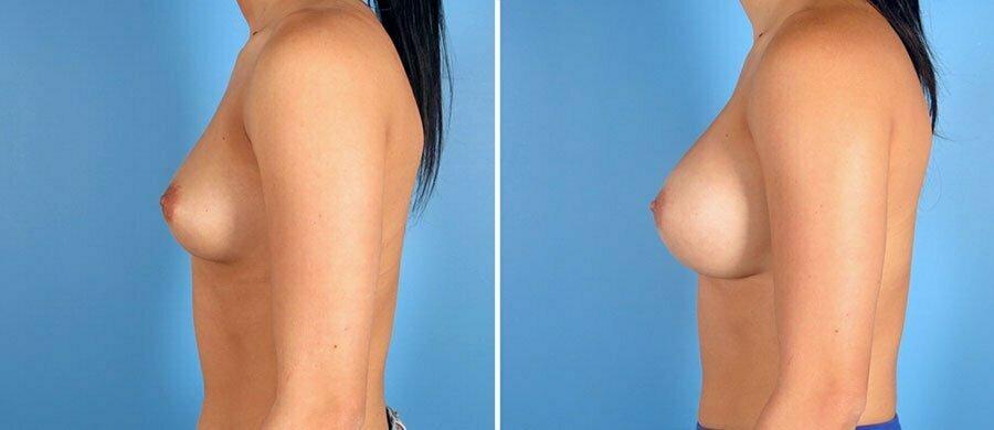 breast-augmentation-7314c-swan-center