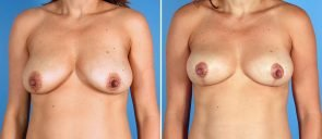 breast-lift-7134a-swan-center