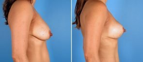 breast-lift-7134c-swan-center