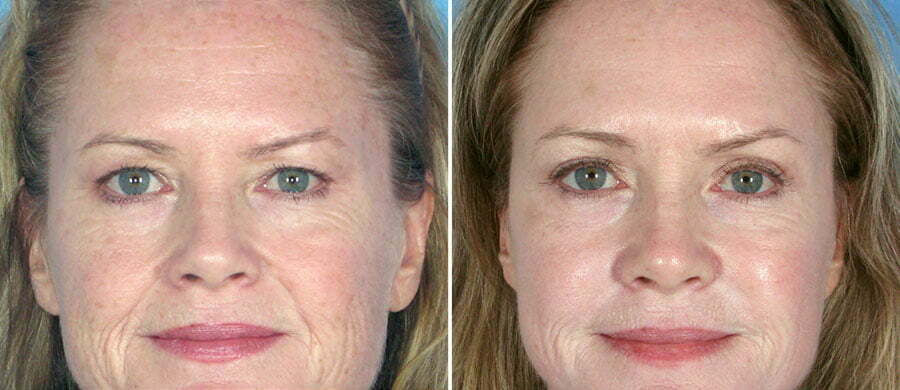 Eyelid Lift & Brow Lift