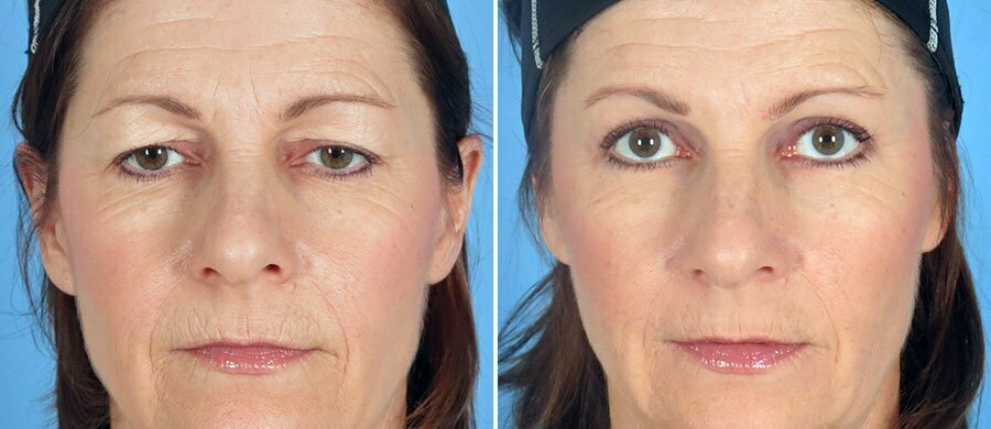 Brow Lift Amp Eyelid Lift With Dermabrasion Swan Center