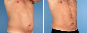liposuction-7006-7010b-swan-center