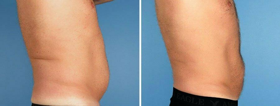 liposuction-7006-7010c-swan-center