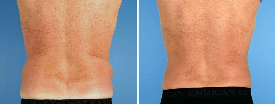 liposuction-7006-7010d-swan-center
