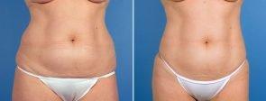 liposuction-7362-7364-7366a-swan-center