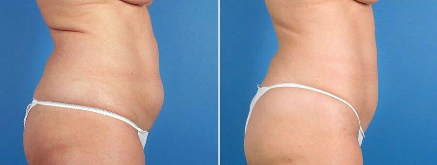 liposuction-7362-7364-7366c-swan-center