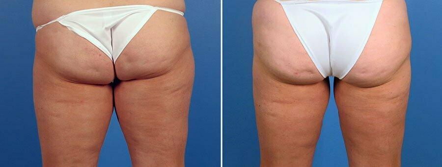 liposuction-7362-7364-7366d-2-swan-center