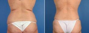 liposuction-7362-7364-7366d-swan-center