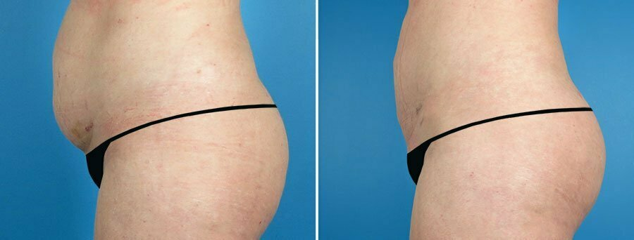liposuction-fat-transfer-6844c-swan-center