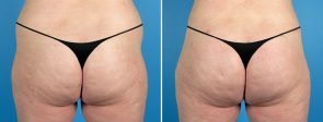 Liposuction & Fat Transfer