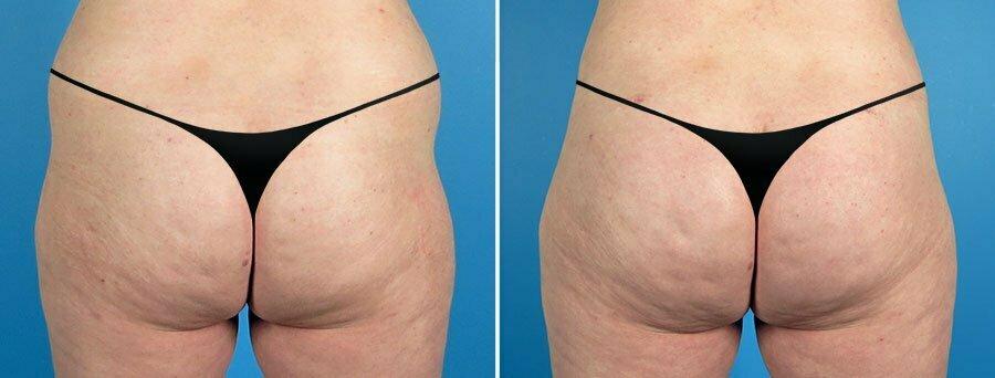 Liposuction & Fat Transfer