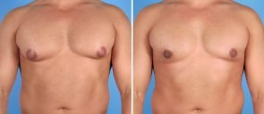 male-breast-reduction-6998a-swan-center