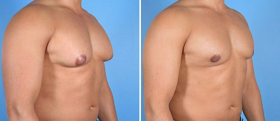 male-breast-reduction-6998b-swan-center