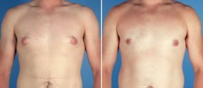 male-breast-reduction-7029a-swan-center