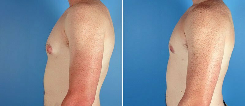 male-breast-reduction-7029c-swan-center