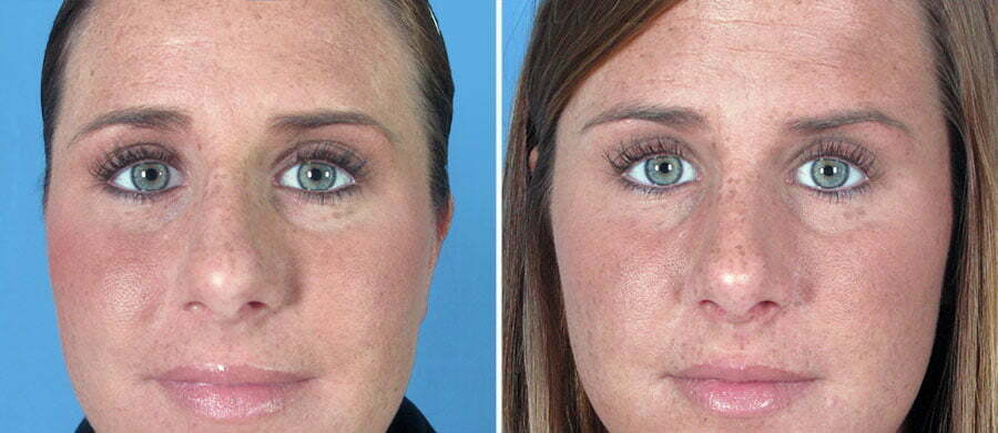 rhinoplasty-6840a-swan-center