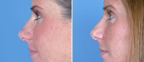 rhinoplasty-6840c-swan-center