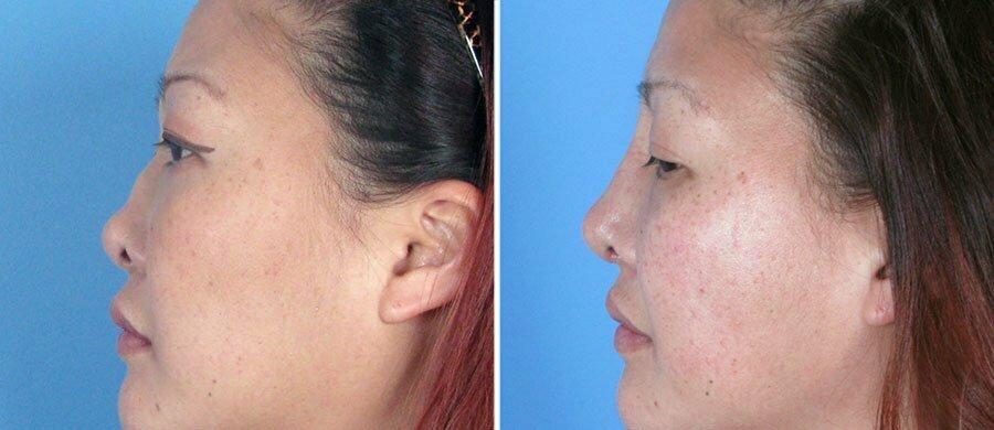 rhinoplasty-7557-18c-swan-center