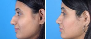 rhinoplasty-7557-42c-swan-center