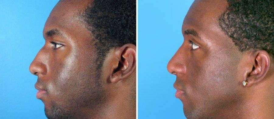 rhinoplasty-7557-46c-swan-center