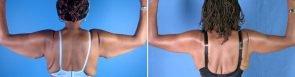 Upper Arm Lift