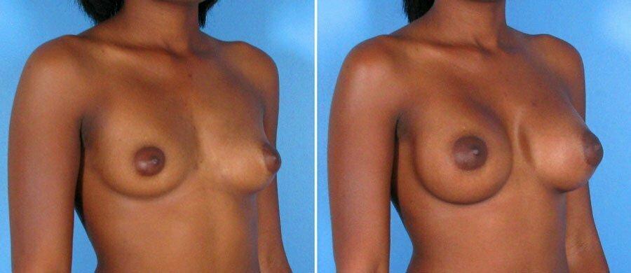 breast-augmentation-001b-swan-center