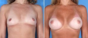 breast-augmentation-004a-swan-center