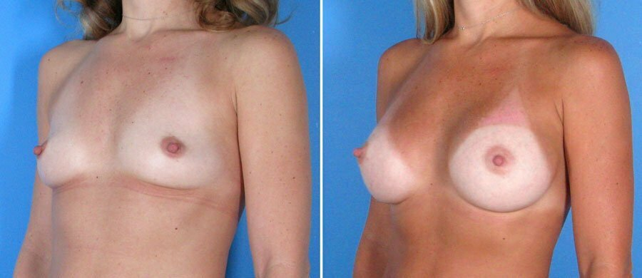 breast-augmentation-004b-swan-center