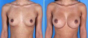 breast-augmentation-005a-swan-center