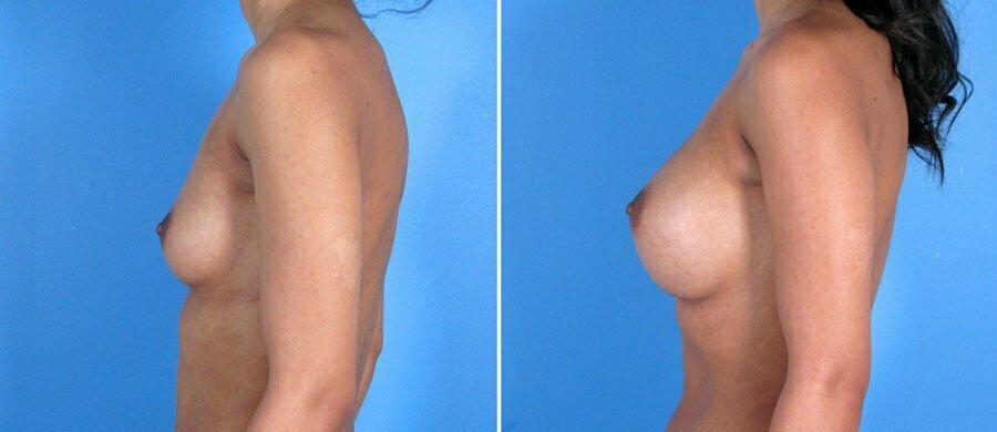 breast-augmentation-005b-swan-center