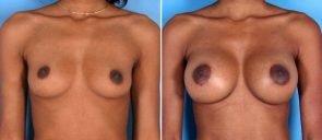 breast-augmentation-011a-swan-center