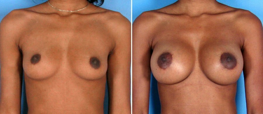 breast-augmentation-011a-swan-center