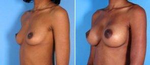 breast-augmentation-011b-swan-center