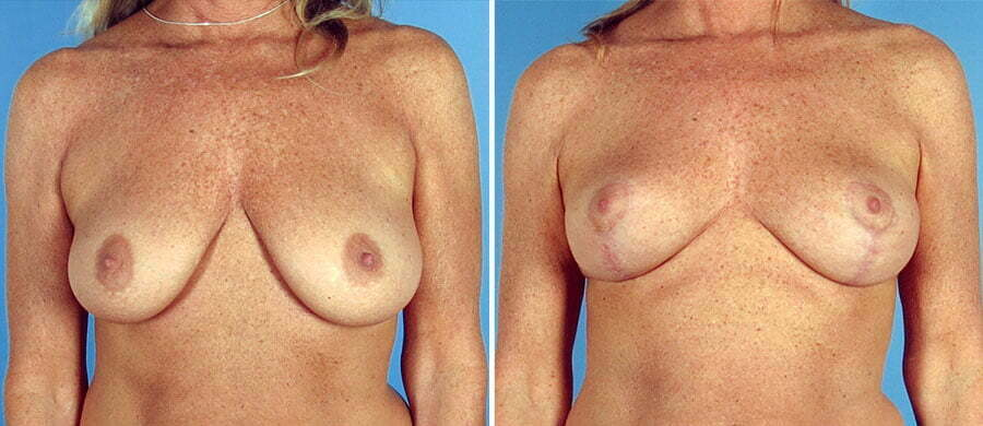 breast-lift-7138a-swan-center