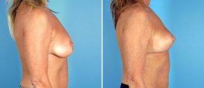 breast-lift-7138c-swan-center