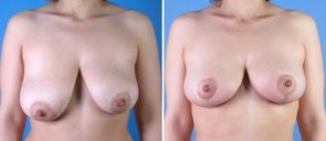 breast-reduction-breast-lift-001a-swan-center