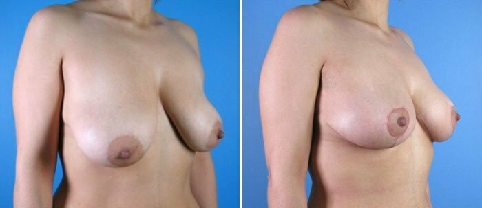 breast-reduction-breast-lift-001b-swan-center