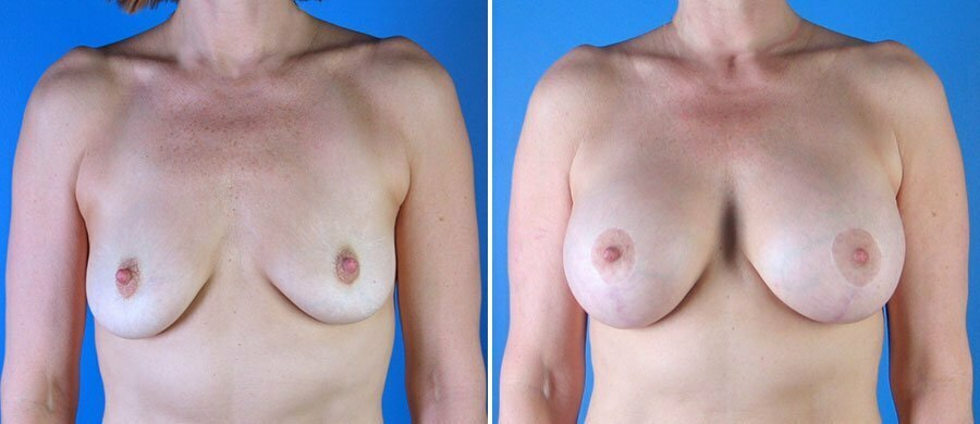 With you breast lift patient photos