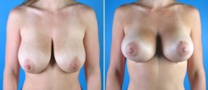 breast-reduction-breast-lift-009a-swan-center