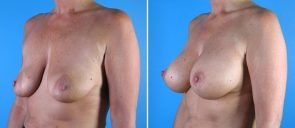 breast-reduction-breast-lift-010a-swan-center